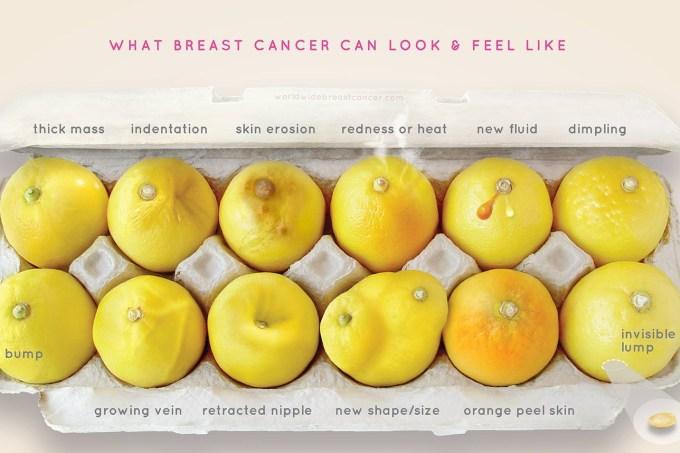 limoes-cancer-de-mama