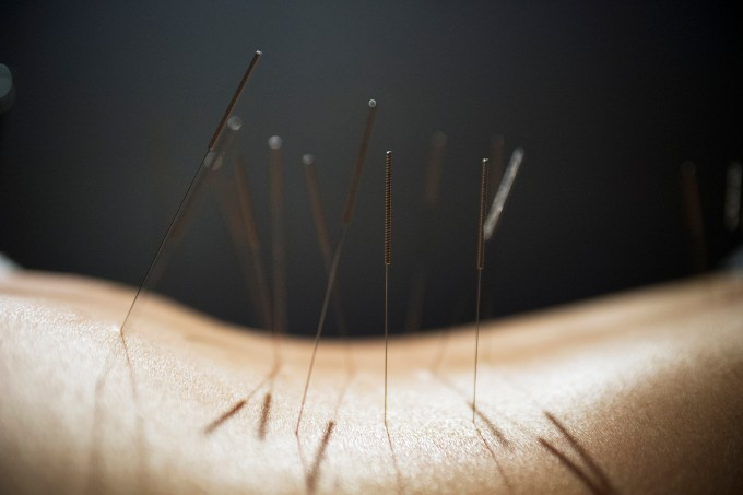 Midsection of person with acupuncture needles on back against black background